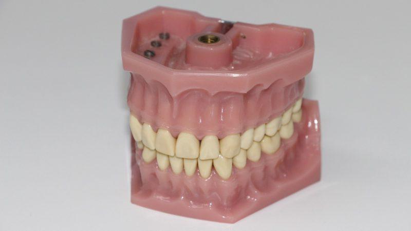 sztuczna szczęka, dentysta